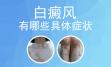 男性颈部白癜风有哪些症状_北京白癜风医院